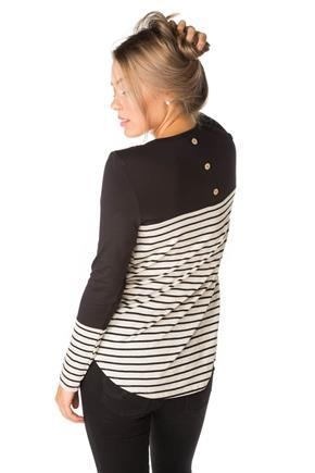 Stripe Tunic with Back Button Detail